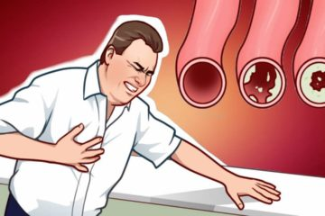 20 Foods that will Clean Your Arteries Naturally & Protect You from Heart Attacks