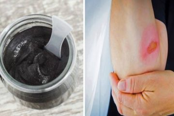 The Black Healing Salve that the Amish Have Been Using for Centuries to Treat Skin Problems