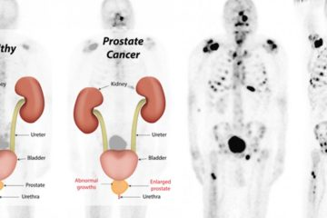 Unusual Signs of Prostate Cancer most Men Do not Know