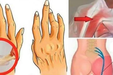 A Simple & Easy Trick to Treat Arthritis, Back Pain & Sciatica: Works Better than Pills!