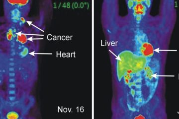 21 Early Warning Signs that Cancer Is Growing in Your Body