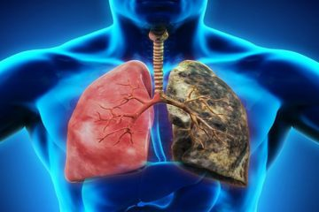 Early Symptoms of Lung Cancer You Should not Ignore