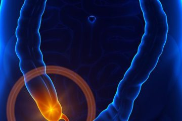 6 Signs Your Appendix Is about to Burst