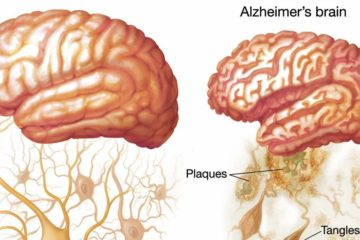 This Vitamin Deficiency Increases the Risk of Alzheimer's