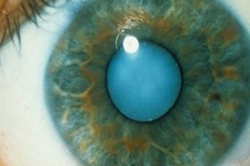 How to Use Castor Oil to Dissolve Cataracts & Get 20/20 Vision