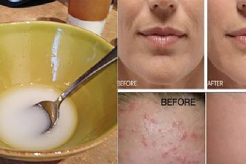 Say Goodbye to Wrinkles & Sagging Skin by Washing it with this Powerful Mixture
