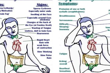 Symptoms, Triggers & Treatment of Hypothyroidism & Hyperthyroidism