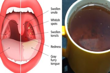 The Tea that Cures Strep Throat, Flu & Sinus Infections