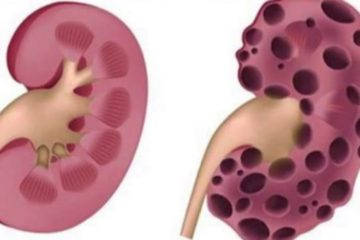 10 Deadly Everyday Habits which Damage Your Kidneys beyond Repair
