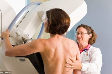 Surgeons Admit that Mammography Is Outdated & Harmful to Women!