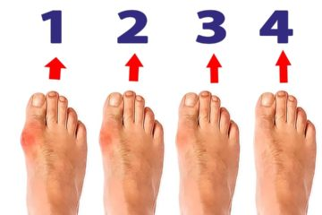 Bunions: What They Are & How to Treat Them