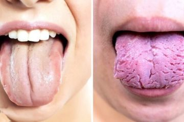 Your Tongue Is Trying to Reveal these 3 Things about Your Health: Pay Attention