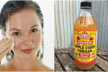 6 Easy & Potent Methods to Better Your Skin Quality with Apple Cider Vinegar