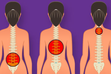7 Easy & Powerful Exercise to Strengthen & Stretch Your Back