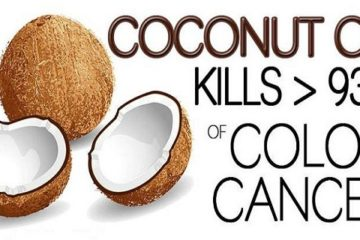 Doctors Are in Shock: Coconut Oil Destroys 83% of Colon Cancer Cells