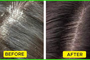 The Different Types of Dandruff & How to Treat Them