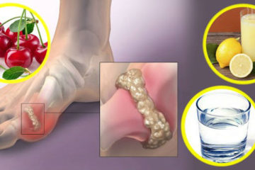6 Natural Remedies to Remove Uric Acid Crystal Deposits in the Joints