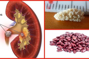 Best Natural Remedies to Ease the Removal of Kidney Stones