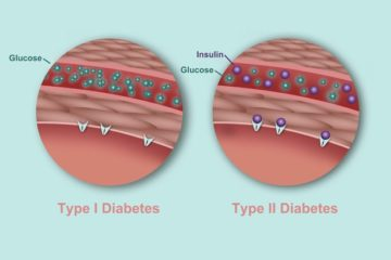 Be Prepared: The Symptoms of Diabetes & Who Is at Risk
