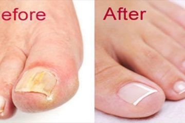 DIY Nail Fungus Remedy with Baking Soda & Apple Cider Vinegar
