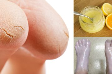 5 Great DIY Remedies to Treat Cracked Heels Naturally