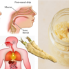 Make this Horseradish Remedy & Remove Phlegm & Mucus from the Lungs