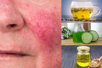 7 Beneficial DIY Remedies for Rosacea that actually Work