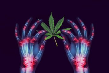 Cannabis Relieves Arthritis: Learn How to Use It to Repair Arthritic Joints