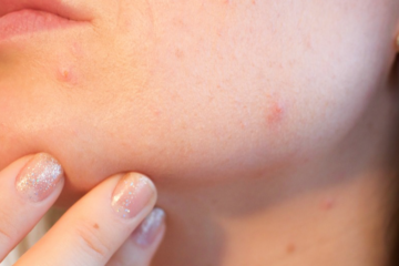 Your Acne Reveals Important Information about Your Health