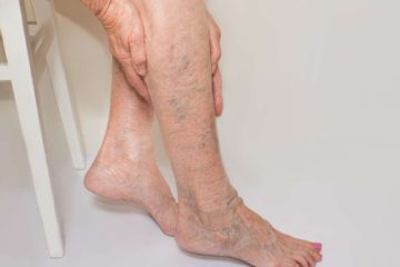 Chronic Venous Insufficiency Triggers Leg Ache; 5 Natural Ways to Relieve the Symptoms