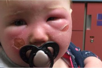 This Mother Warns all Parents about the Dangers of Aerosol Sunscreens