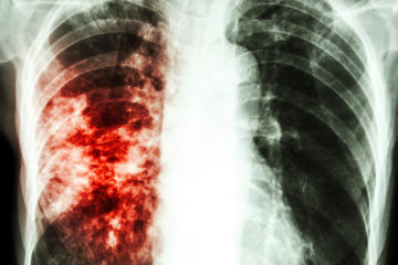 Home Remedies to Help with Tuberculosis Symptoms