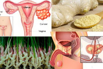 Could Ginger Be the Answer to Ovarian & Prostate Cancer?