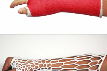 Innovative Engineering: Experts Make a Breathable & Waterproof Cast that can Replace Plaster Ones