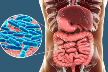 Leaky Gut: What Is it? Is it Real? 10 Common Symptoms to Watch out for