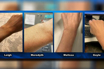 Women Are Realizing they all Have the same Freckle on their Wrist