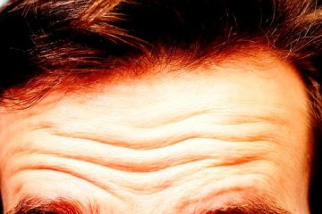 Research Finds a Link between Deep Forehead Wrinkles & Heart Illness