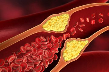 Top 10 Spices & Herbs to Unclog Your Arteries & Prevent a Heart Attack